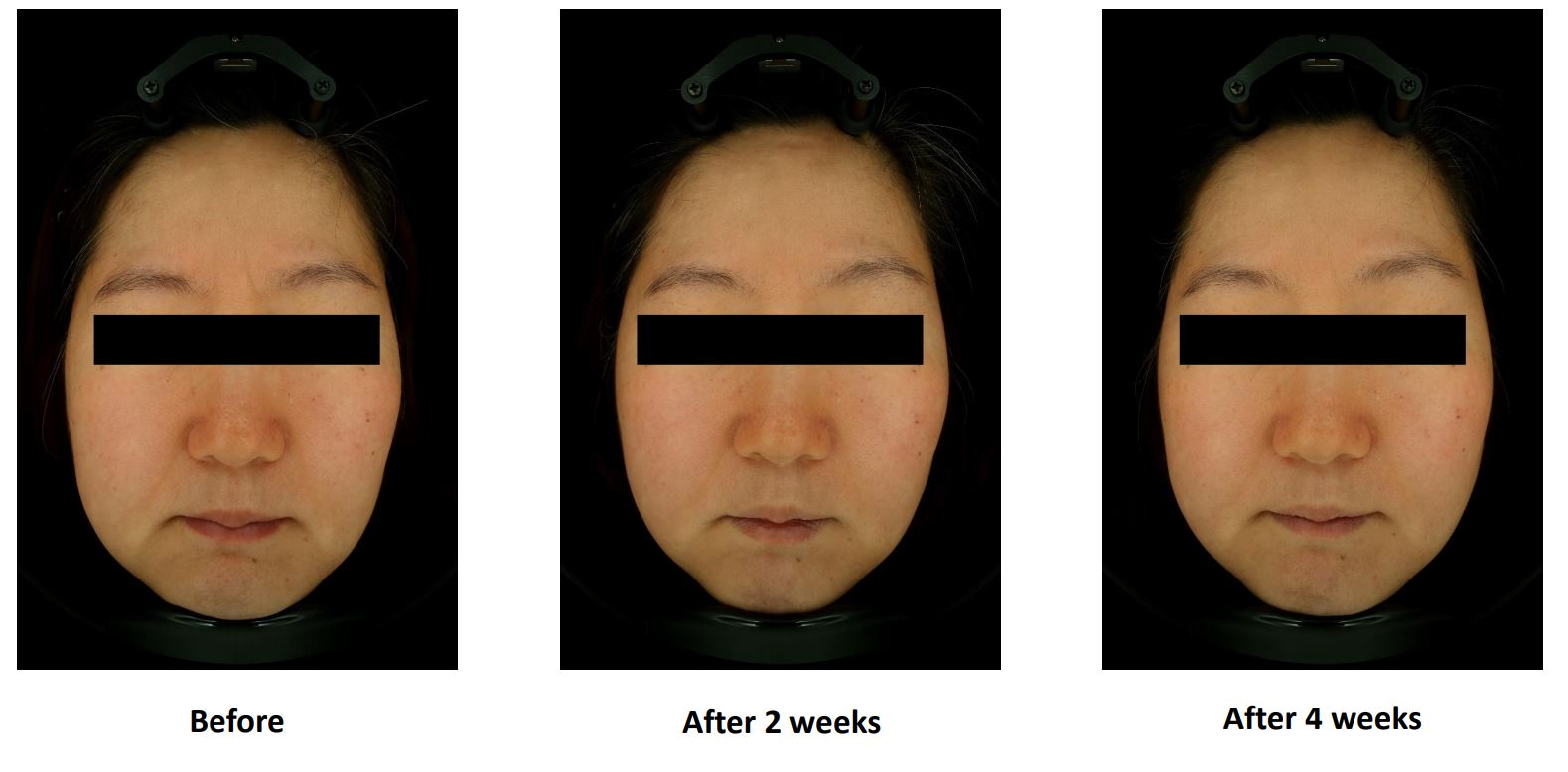 Cell Return Brightening Before & After