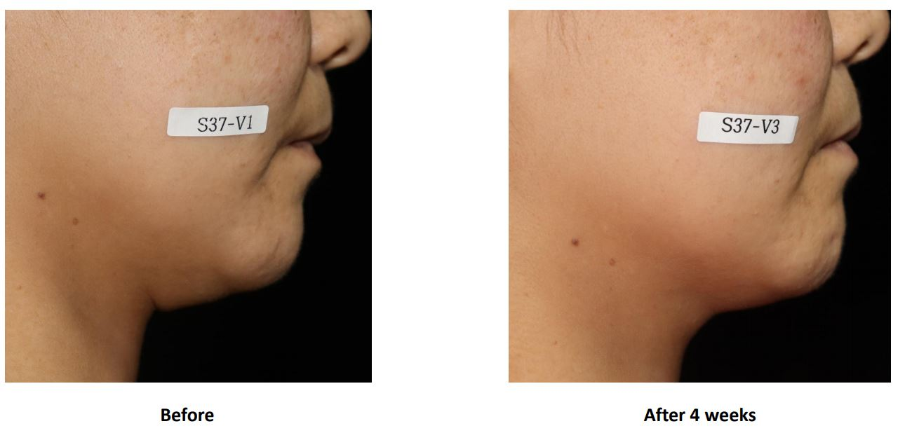 Cell Return Tightening Before & After 2